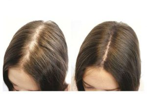 Princess Hair opiniones - foro, comentarios, efectos secundarios