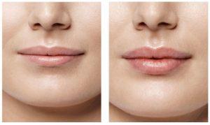 City Lips opiniones - foro, comentarios, efectos secundarios