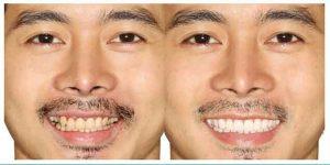 Denta Seal funciona, composicion, ingredientes - pasta dental