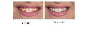 Como iBright teeth whitening, funciona?