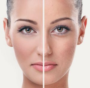 A veces, su expresión aparece temprano en el envejecimiento biológico, debido a los efectos negativos de numerosos: