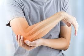 ArthroNeo combate eficazmente el dolor en las articulaciones