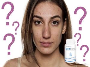 Como Cleaderm capsulas, ingredientes - efectos secundarios?